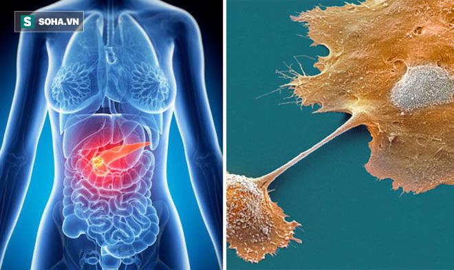 6 dấu hiệu của ung thư tuyến tụy: Căn bệnh cực nguy hiểm vì tỷ lệ sống sót chỉ còn 8,5% - Ảnh 2.