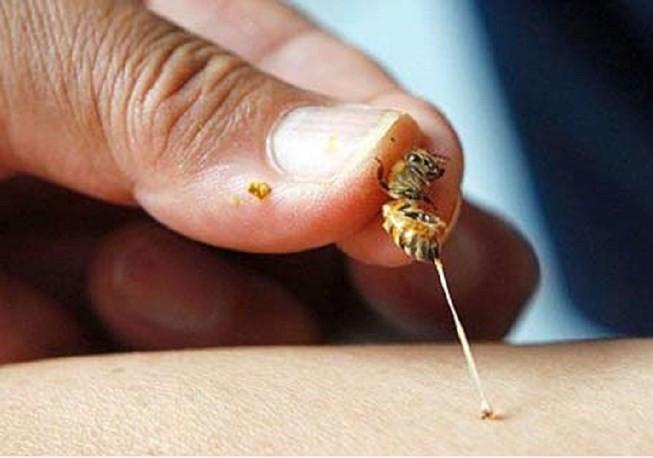Chọc phá tổ ong, bé trai 5 tuổi suy đa phủ tạng nguy kịch - Ảnh 2.