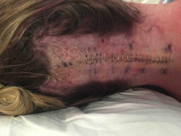 Bị đau đầu và uống thuốc giảm đau không khỏi, người phụ nữ đi khám thì nhận được hung tin chỉ còn 24 giờ để sống - Ảnh 3.