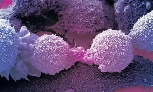 Các nguyên nhân làm ung thư đang có xu hướng tăng ở Việt Nam - Ảnh 1.