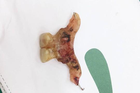 Đợi răng giả ra ngoài, bệnh nhân thủng cả ruột - Ảnh 2.