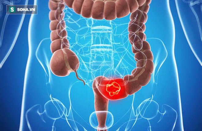 Các nhà nghiên cứu khẳng định: Làm tốt 2 việc này có thể ngăn ngừa ung thư đại trực tràng - Ảnh 1.