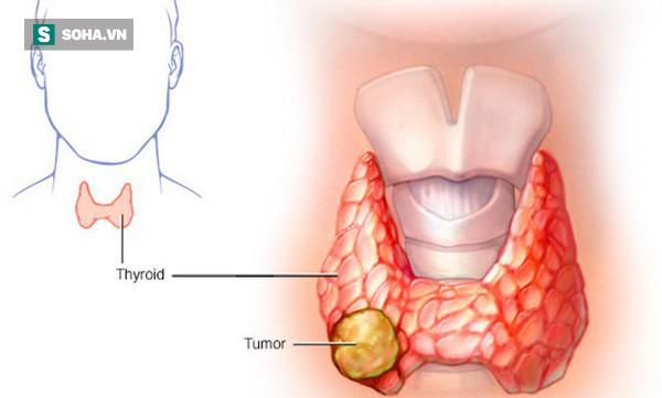 Thấy con gái có khối u ở cổ, từ chối mổ để tự hết, cha mẹ bàng hoàng khi biết là ung thư - Ảnh 2.