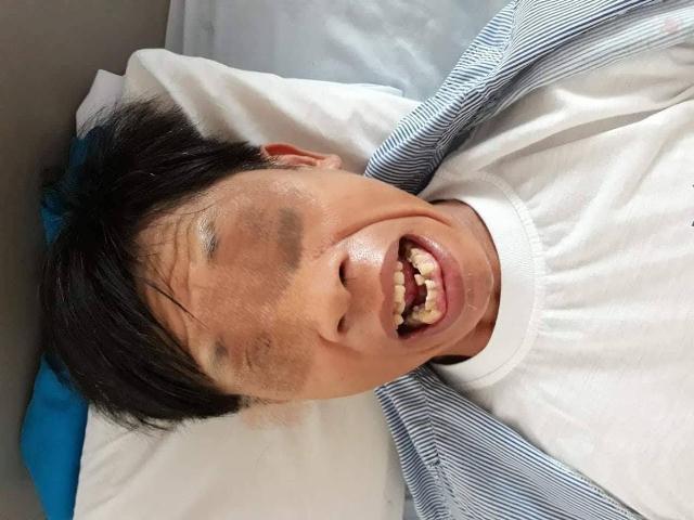 Cứng hàm, nhiễm trùng uốn ván chỉ vì một chiếc dằm tre nhỏ xíu đâm - Ảnh 1.