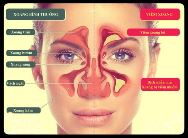 GS Đông y hướng dẫn cách chữa viêm mũi, viêm xoang hiệu quả: 5 phút/ngày, 7 ngày là khỏi - Ảnh 1.