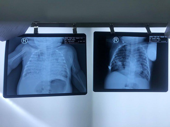 Sốc: Bé trai phổi trắng xoá do nhiễm lao từ cha khi 2 tháng tuổi - Ảnh 1.