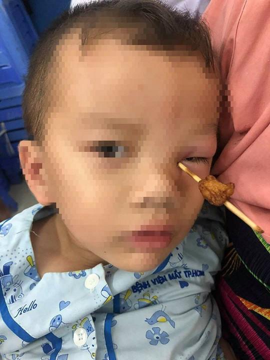 Que tăm xuyên vào hốc mắt bé 4 tuổi - Ảnh 1.