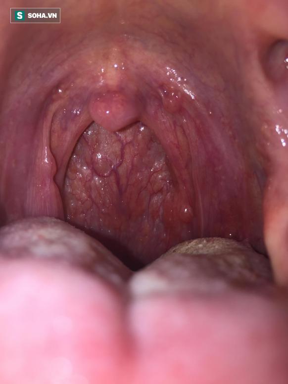 Có dấu hiệu chết người này không khỏi sau 2 - 3 tuần, hãy cẩn trọng với ung thư cổ họng - Ảnh 1.