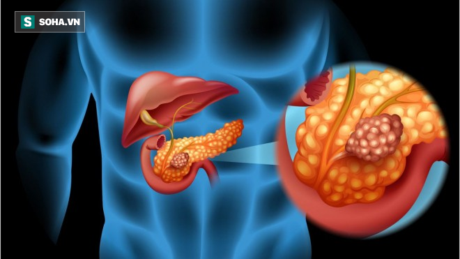 4 dấu hiệu sớm nhất của viêm tụy cấp - căn bệnh diễn biến nhanh và rất nguy hiểm - ảnh 1