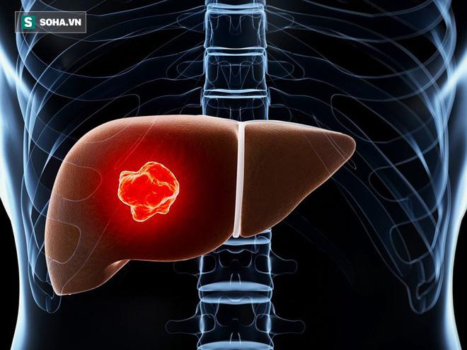 5 yếu tố  lớn nhất có nhiều khả năng gây ung thư gan: Dù bạn ở lứa tuổi nào cũng nên tránh - Ảnh 1.