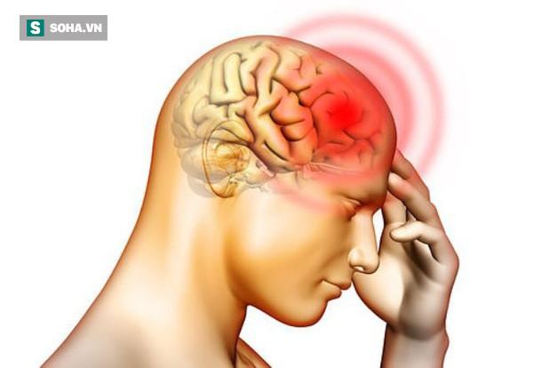 5 dấu hiệu của thiếu máu não: Dễ nhầm với bệnh khác nên nhiều người tử vong trong tích tắc - Ảnh 1.