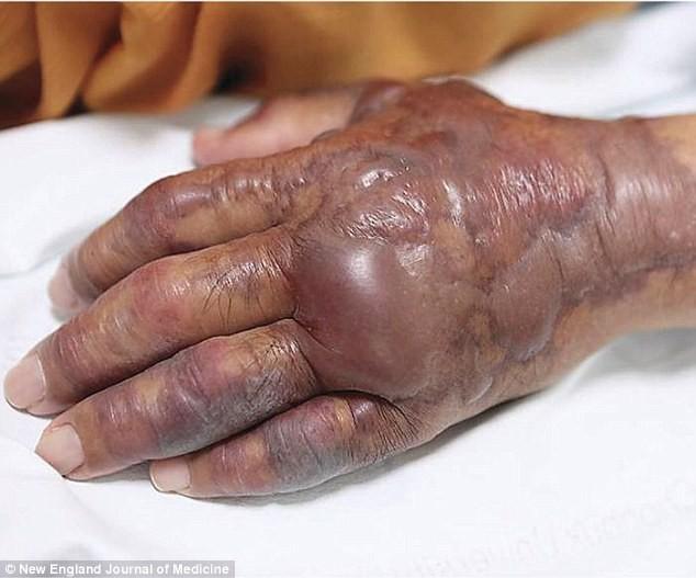 Ăn sushi cá sống, cụ ông 71 tuổi bị cắt bỏ cả cánh tay - Ảnh 2.