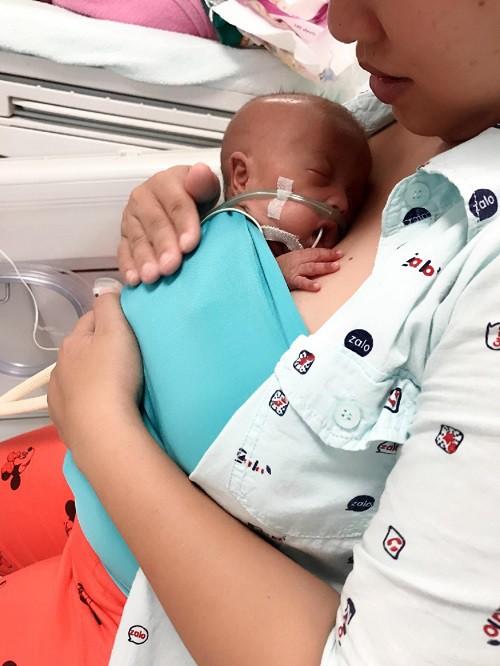 Hành trình kỳ diệu của bé sinh cực non 600g sau 9 tuần - Ảnh 3.