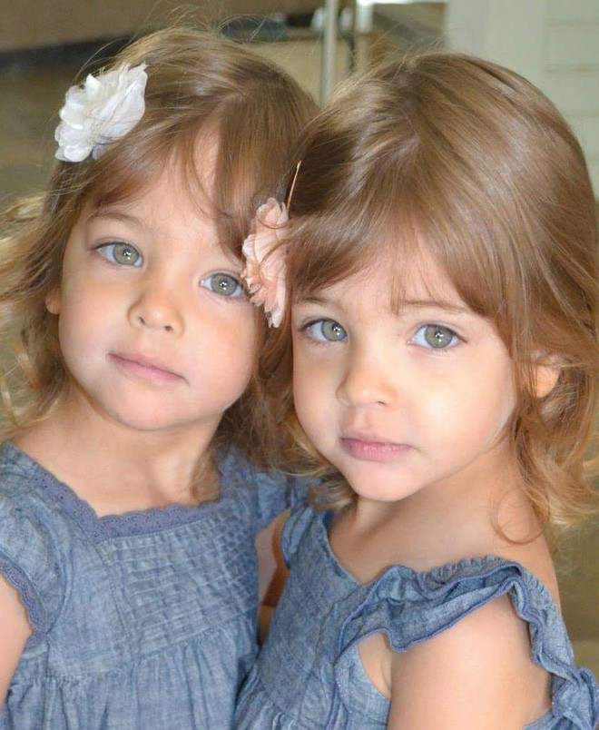 Giấu 2 con gái sinh đôi mãi đến năm 7 tuổi mới khoe hình, bà mẹ không ngờ cuộc đời họ đã thay đổi sau một đêm - Ảnh 1.