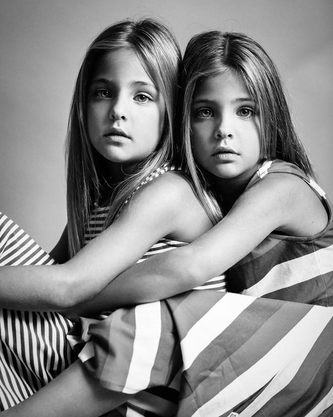 Giấu 2 con gái sinh đôi mãi đến năm 7 tuổi mới khoe hình, bà mẹ không ngờ cuộc đời họ đã thay đổi sau một đêm - Ảnh 2.