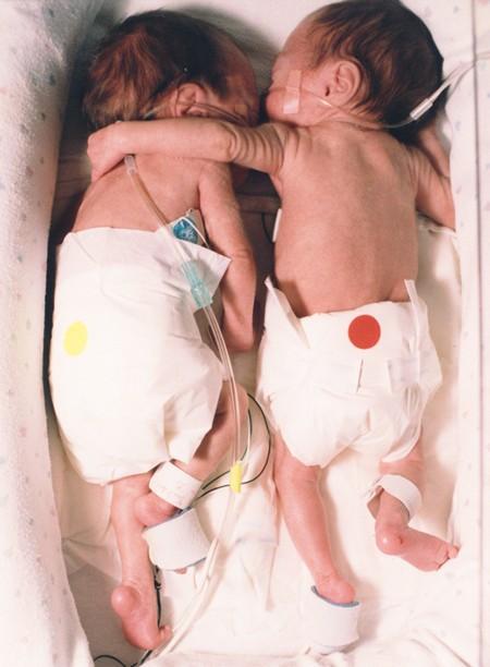 Bất chấp quy tắc, nữ y tá đặt bé sơ sinh hấp hối nằm cạnh chị sinh đôi, tạo nên kết quả chấn động - Ảnh 2.
