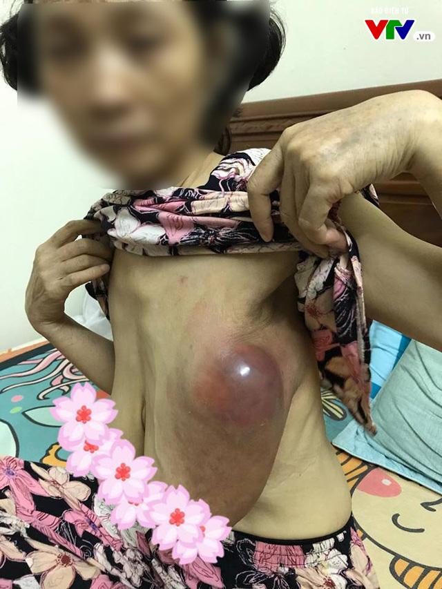 Rước họa vì bài thuốc chữa ung thư vú truyền miệng - Ảnh 1.