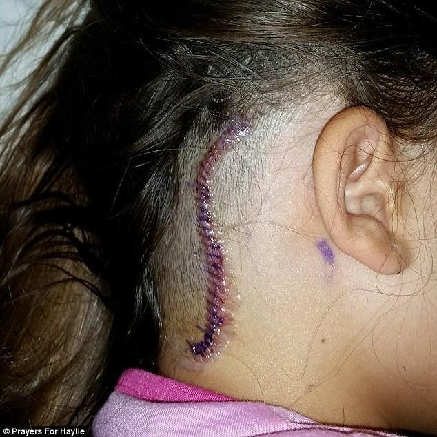 Tưởng là đau đầu thông thường, cô gái 14 tuổi được chẩn đoán có một khối u trong não - Ảnh 3.