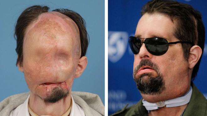 Các bác sĩ Pháp vừa làm nên lịch sử, khi cấy ghép khuôn mặt lần thứ hai cho cùng một người - Ảnh 3.
