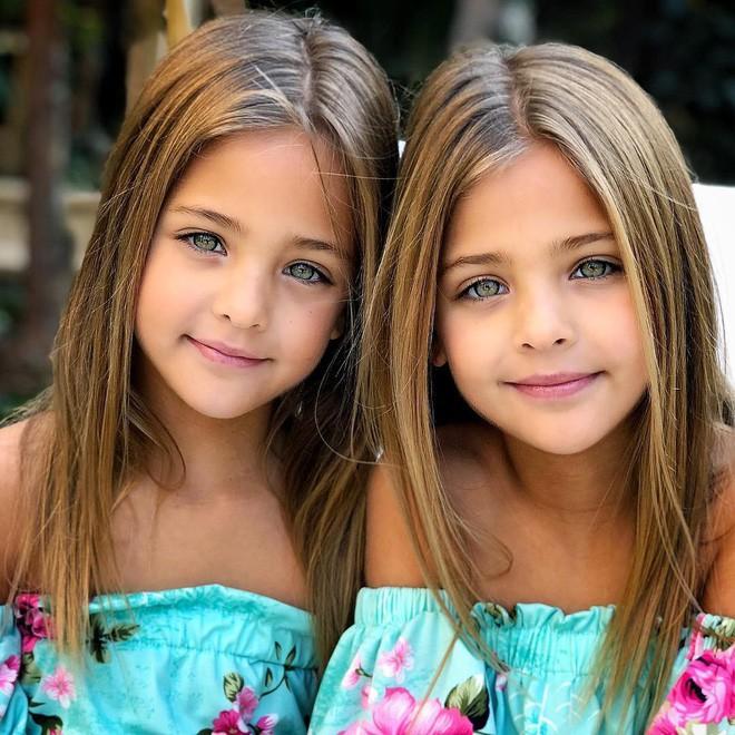 Giấu 2 con gái sinh đôi mãi đến năm 7 tuổi mới khoe hình, bà mẹ không ngờ cuộc đời họ đã thay đổi sau một đêm - Ảnh 5.