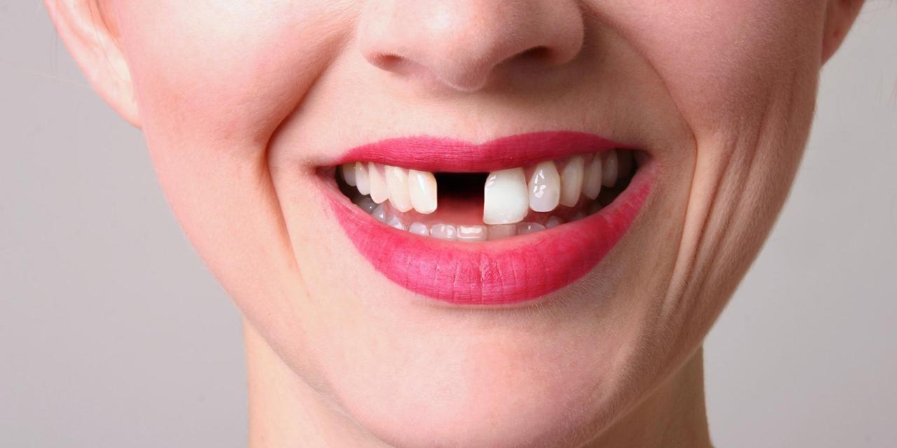 Kết quả hình ảnh cho Nếu điều trị tủy răng cẩu thả hoặc không đúng
