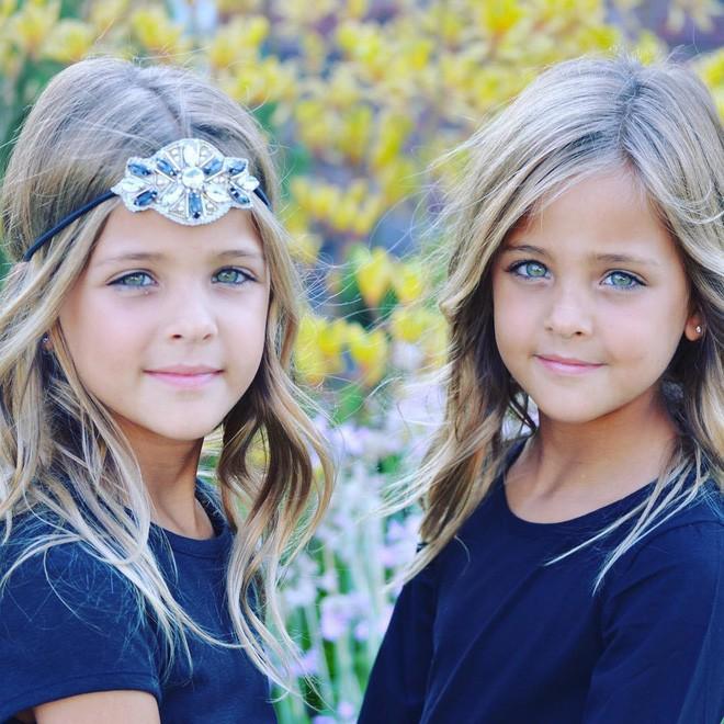 Giấu 2 con gái sinh đôi mãi đến năm 7 tuổi mới khoe hình, bà mẹ không ngờ cuộc đời họ đã thay đổi sau một đêm - Ảnh 7.