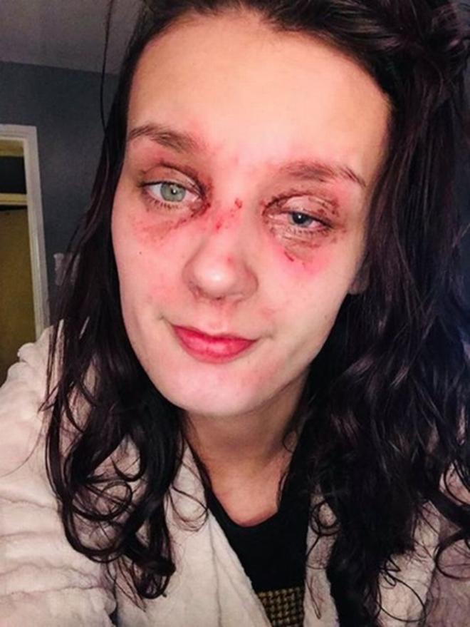 Thiếu nữ trẻ bị bỏng mắt, suy giảm thị lực vì quả trứng luộc phát nổ và lời cảnh báo tới tất cả chúng ta - Ảnh 3.