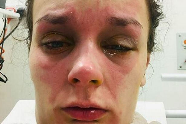 Thiếu nữ trẻ bị bỏng mắt, suy giảm thị lực vì quả trứng luộc phát nổ và lời cảnh báo tới tất cả chúng ta - Ảnh 4.