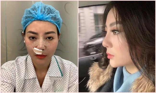 Sau Quỳnh búp bê, Thanh Hương Lan cave lộ ảnh phẫu thuật thẩm mỹ - Ảnh 1.