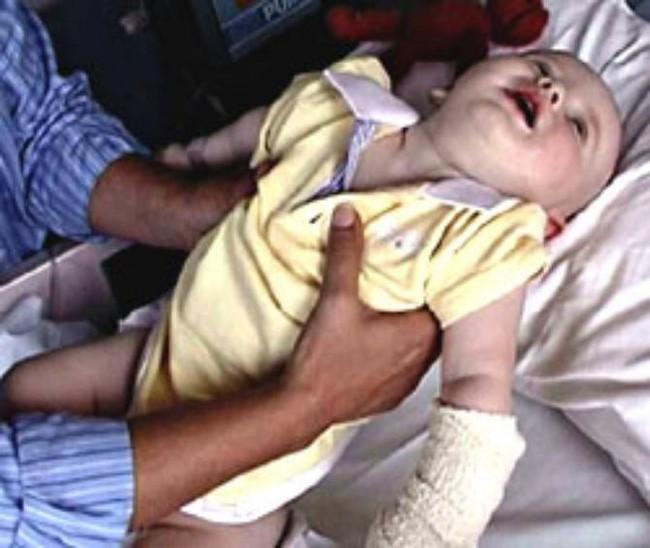 Chị Kelli Tager hồi còn là trẻ sơ sinh bị liệt từ đầu đến chân sau khi được mẹ cho ăn mật ong.