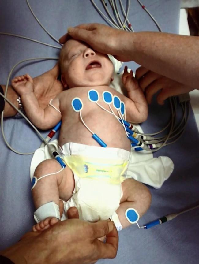 Mang thai nhưng vẫn chủ quan uống rượu, đến ngày sinh mẹ sốc nặng khi nhìn thấy con và không ngừng hối hận - Ảnh 2.
