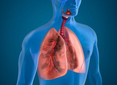 10 cách giúp thanh lọc phổi tự nhiên hiệu quả - Ảnh 1.