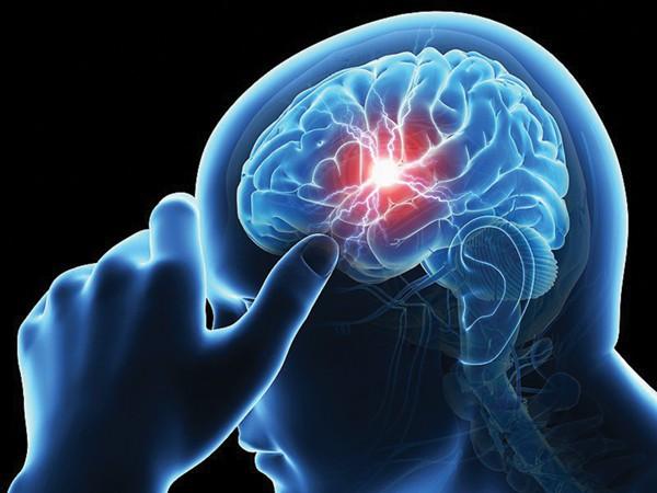 Nguy cơ gây đột quỵ do mỡ máu tăng cao - Ảnh 1.