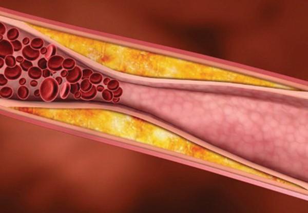 Nguy cơ gây đột quỵ do mỡ máu tăng cao - Ảnh 2.