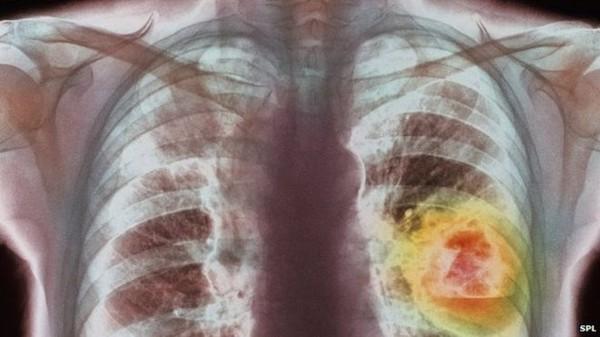 Căn bệnh ung thư gây tử vong hàng đầu giết đến 1,7 triệu người năm 2018 - Ảnh 1.