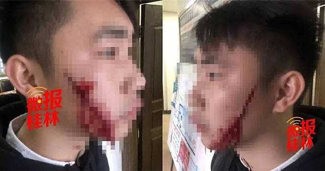 Ôm nhau lần cuối tại sân ga trước khi chia tay, thiếu nữ cầm dao rạch mặt bạn trai - Ảnh 1.