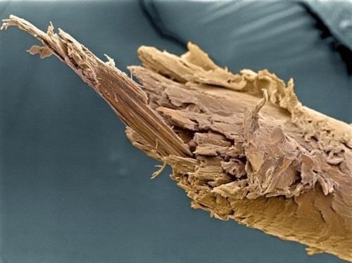 16 phần trên cơ thể trông như thế nào dưới kính hiển vi: Bạn sẽ ngạc nhiên khi nhìn thấy - ảnh 11