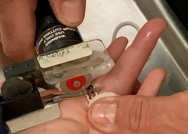 Cô gái đau khổ vì phải cắt chiếc nhẫn kỷ niệm do tăng cân, nhưng cách xử lý của bạn trai mới khiến mọi người chú ý - Ảnh 3.