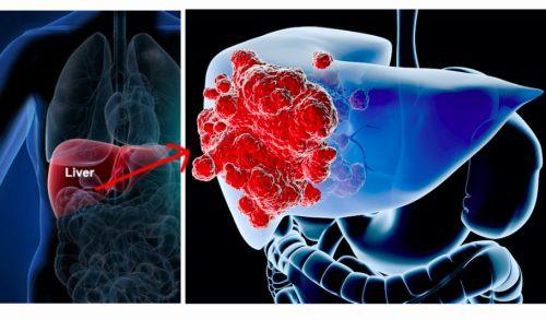 Ung thư gan đứng đầu trong các bệnh ung thư ở VN: GĐ BV Ung bướu chỉ 5 dấu hiệu cảnh báo