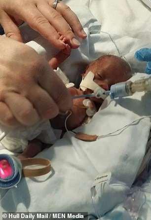Bé gái sinh non 4 lạng trong bức ảnh từng gây xót xa cộng đồng mạng giờ đã lớn với ngoại hình không thể ngờ - Ảnh 8.