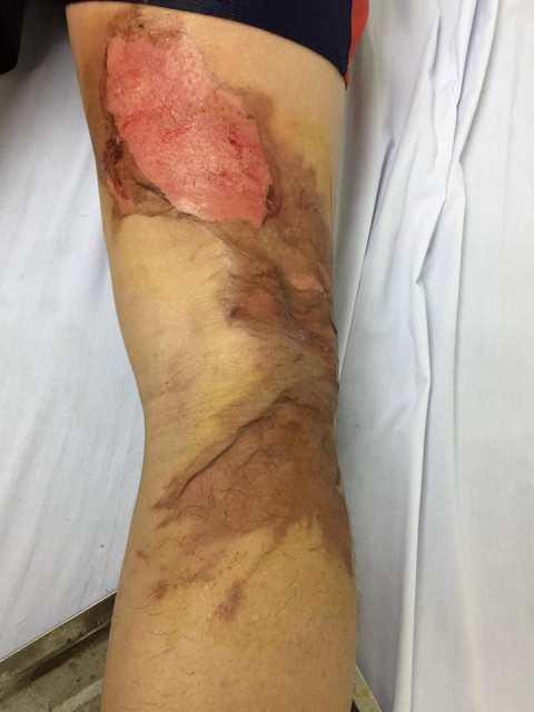 Đắp cao lá vối chữa bỏng, một phụ nữ hoại tử chân, chảy mủ ở vết bỏng - Ảnh 2.