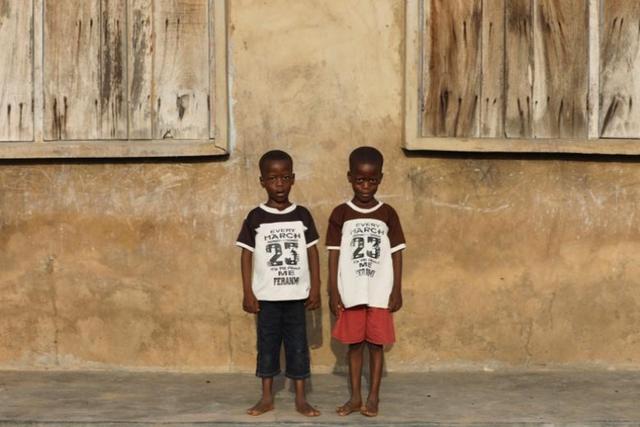 Bí ẩn nguyên nhân thị trấn châu Phi trở thành thủ đô sinh đôi trên thế giới - Ảnh 4.