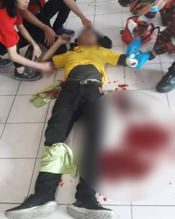 Chụp ảnh tự sướng trong nhà hàng, thanh niên bị đánh chí tử vì lý do không ai ngờ đến - Ảnh 2.