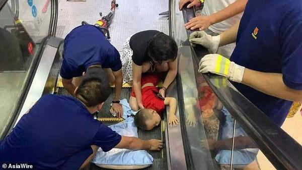 Cậu bé 2 tuổi gần như bị mất cánh tay sau khi bị hút vào thang cuốn.