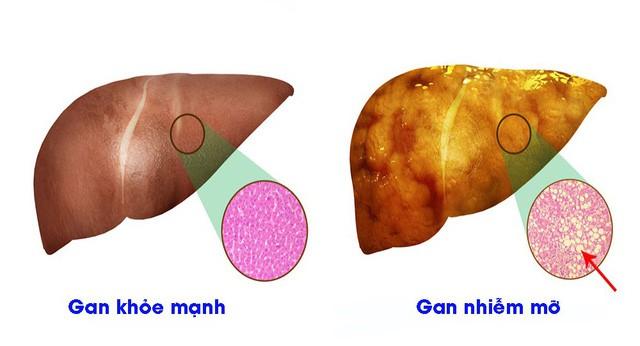 Gan nhiễm mỡ - con đường dẫn tới ung thư: BS mách món ăn trị gan nhiễm mỡ hiệu quả bất ngờ - Ảnh 1.