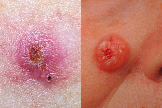 Tia cực tím đang ở ngưỡng rất cao, có thể đốt cháy da, gây ung thư: BS bày 5 cách bảo vệ - Ảnh 2.