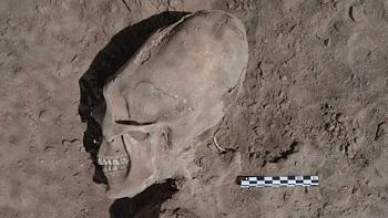 Hộp sọ có hình dáng kì lạ