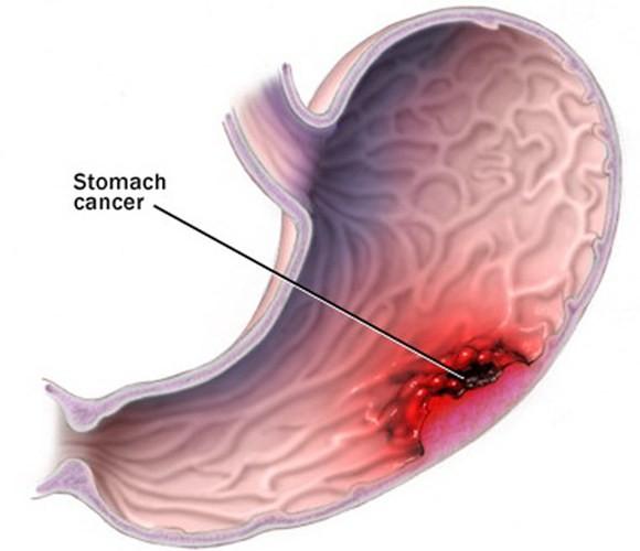 Ung thư dạ dày thường được phát hiện muộn.
