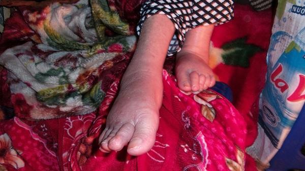 Đôi chân của bà Cúc bị phù, sưng tấy.