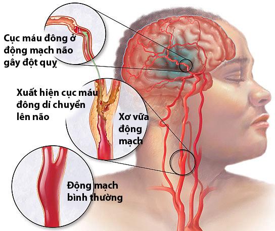 Kết quả hình ảnh cho xuất huyết não